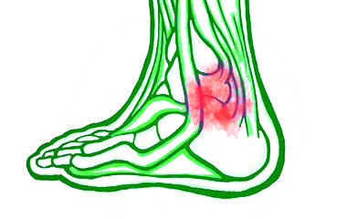 Osteoarthritis in the Ankle and Foot
