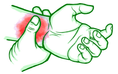 Osteoarthritis in the Hand and Wrist